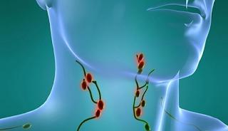 """Καρκίνoς στους λεμφαδέvες: Αυτά είναι τα """"ύπουλα"""" σημάδια"""