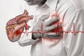 Obat Jantung Koroner Alami, Ampuh Mengobati Jantung Koroner Secara Alami