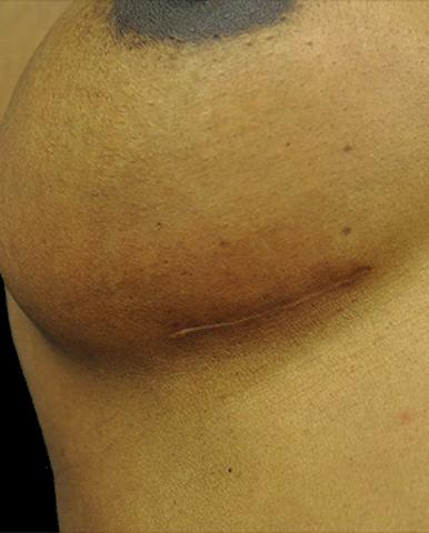 ärr efter bröstoperation