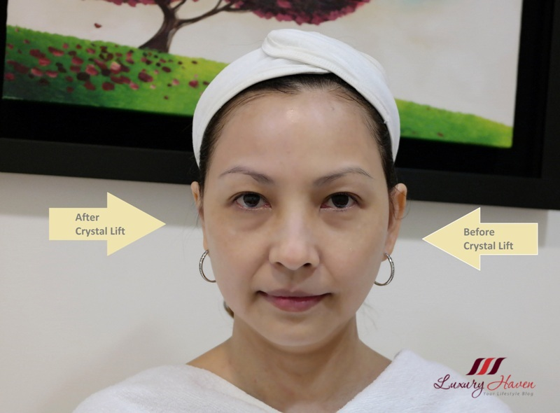 eha clinic crystal lift review singapore aesthetics promotion