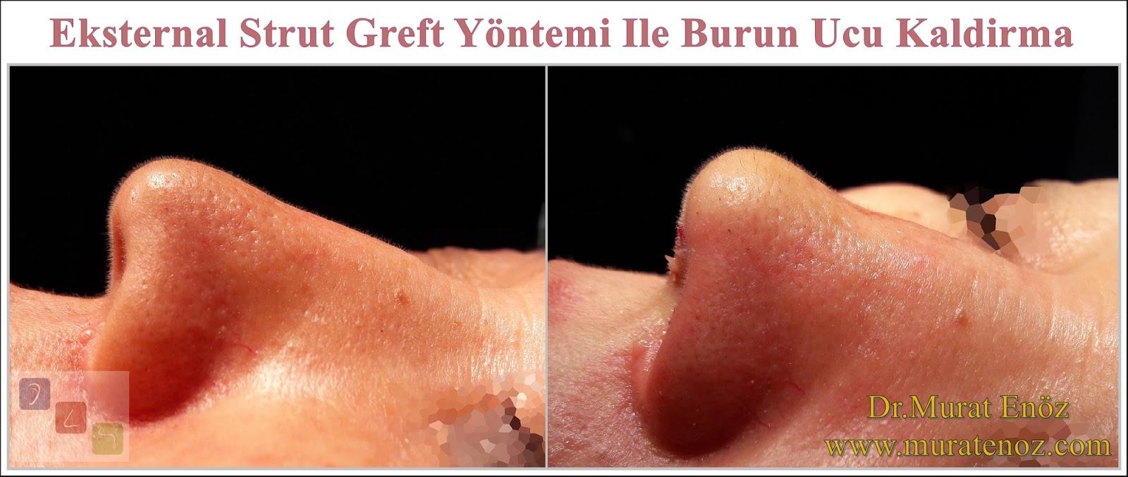 Eksternal Strut Greft Yöntemi - Burun Ucu Kaldırma - Burun Kaldırma - Burun Ucu Düşmesi Tedavisi - Burun Ucu Sarkması Tedavisi - Nasal Tip Lifting - Nose Lift - Nose Lift Surgery - Lift Nose - Nose lift