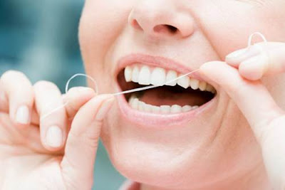 những điều cần biết về bọc răng sứ -16
