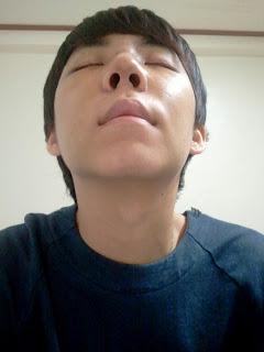 7 hari sesudah operasi plastik mata, operasi plastik hidung, anti aging di Wonjin