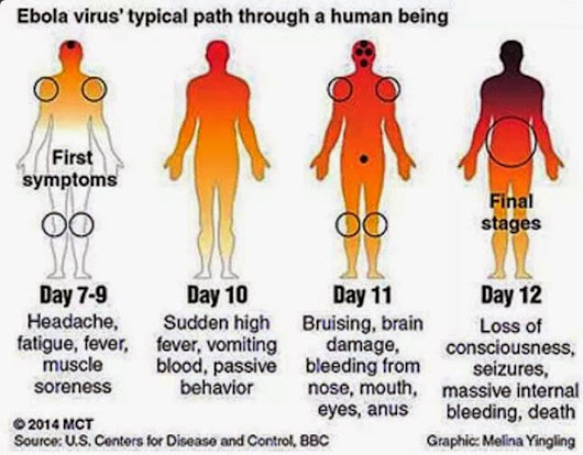 EBOLA VIRUS PROTECTION/CURE