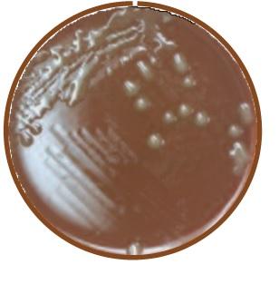 HAEMOPHILUS INFLUENZAE ON CHOCOLATE II