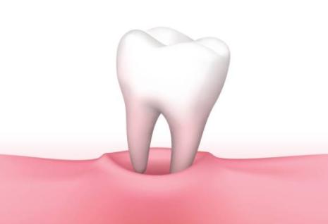 reve dent cassée