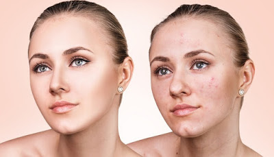 Scar Removal: Acne Treatment for the More Severe Cases