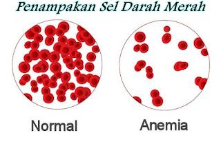 Cara Mengobati Anemia (Kurang Darah)