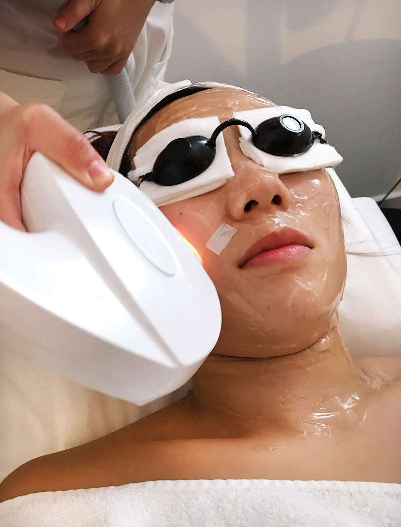 Estheclinic Beat The Stress IPL Treatment Review Singapore
