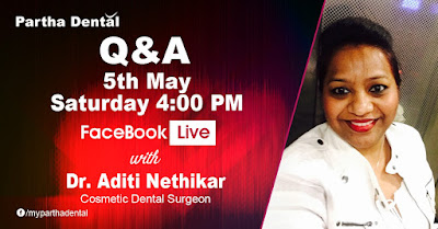 Partha Dental Facebook Live with Dr.Aditi Nethikar