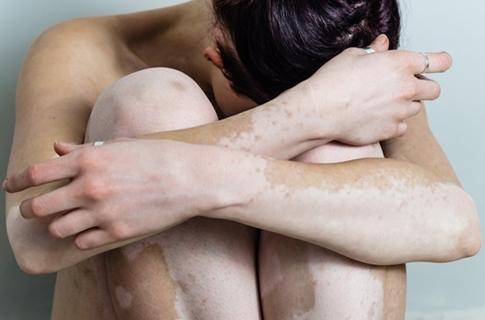 Cara Cepat Menghilangkan Vitiligo dengan Ampuh