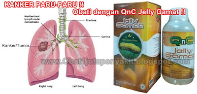 Obat Kanker Paru-Paru Herbal, 100% Terbukti MANJUR Mengobati Kanker Paru-Paru
