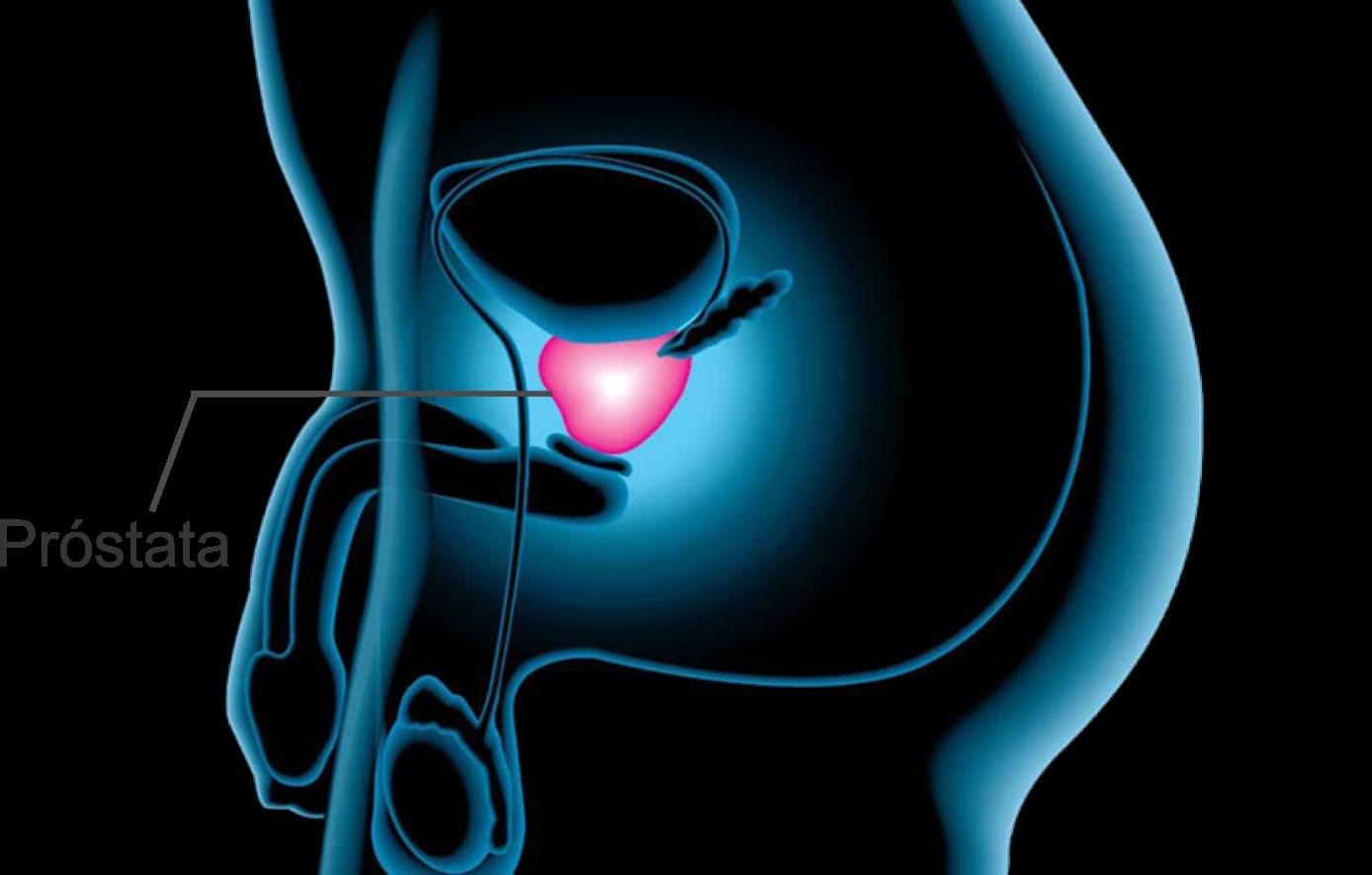 tratamiento con zadaxina y cáncer de próstata