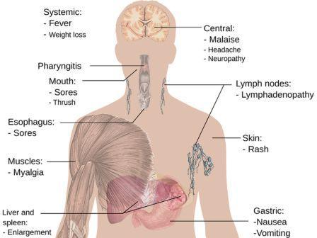 Penyebab Penyakit Asam Lambung
