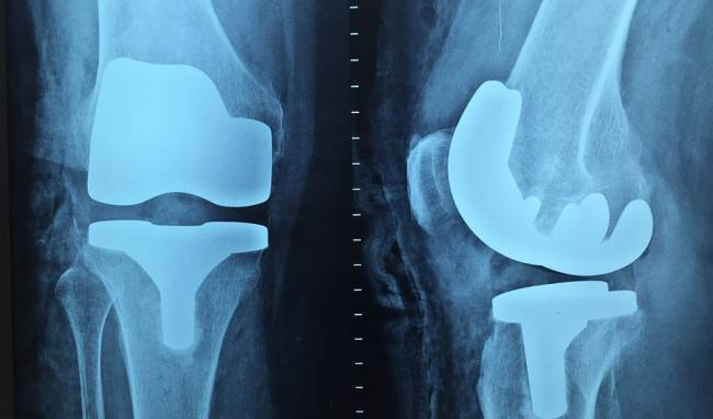 http://samosiezrobi.blogspot.com/2016/11/knee-active-plus-leczenie-kolan-polem.html