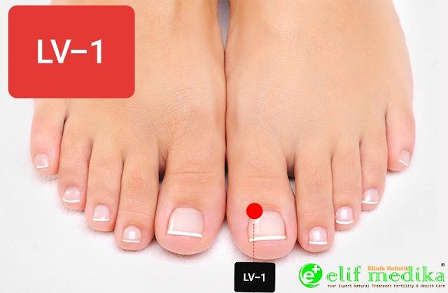 Titik LV-1 Terapi Hernia