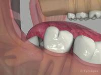Symptômes des dents de sagesse touchées