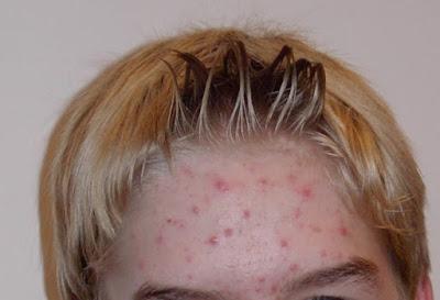 yang umum dikenal sebagai acne vulgaris Mengobati Jerawat Efektif Dengan Minyak Pohon Teh