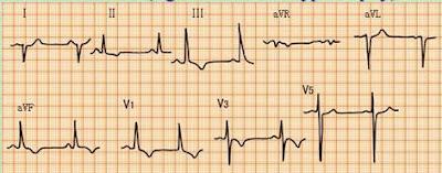 Elektrokardiogram EKG Pulmonary heart disease Kor pulmonal Cor Pulmonale