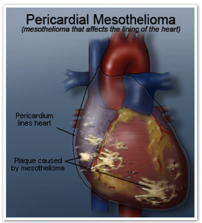 Pericardial Mesothelioma 2016 update