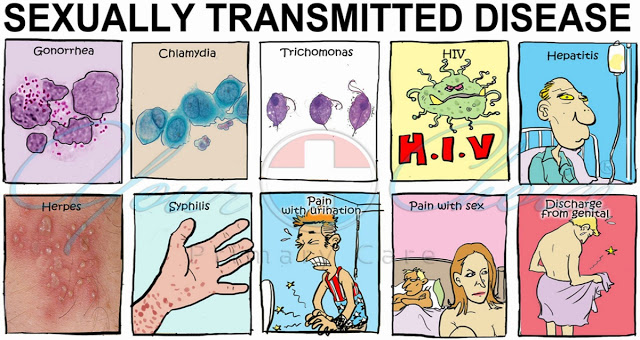 Sexually transmitted diseases list pictures