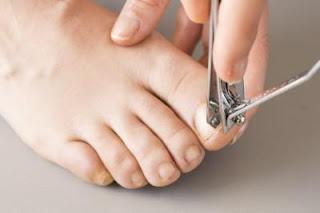 فطريات القدم و الاظافر