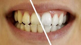 Cara-Untuk-Memutihkan-Gigi-Yang-Sudah-Kuning-Terbaru