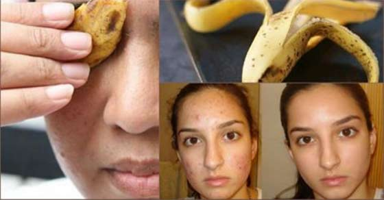 2tHderP Cure Your Skin Problems and Make Your Face Smoth and Fair by Using Banana Peel