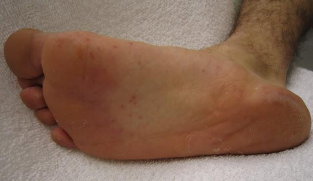 feet disease
