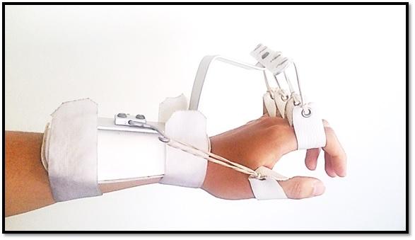 ortesis para pronación y supinación