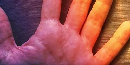 Psoriasis en gotas desaparece