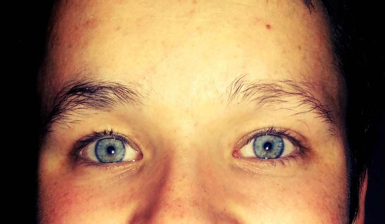 Thriving with Neurofibromatosis: Eye Issues with ...