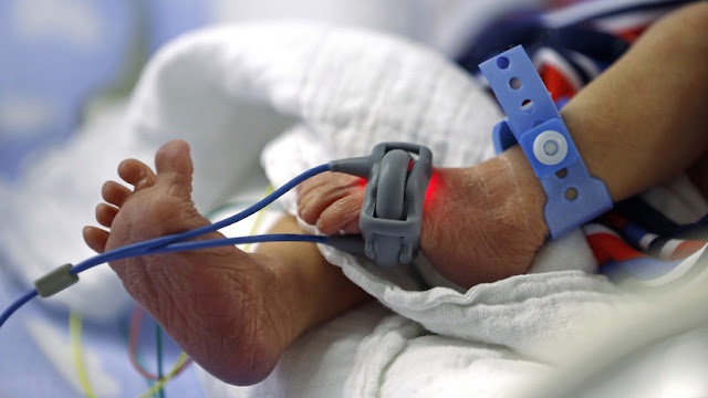 Nace una bebé con el corazón fuera de su cuerpo