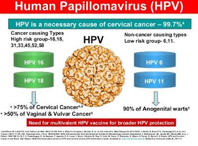 Human papiloma virus atau kutil kelamin