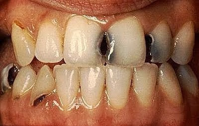 Apakah Benar Gigi Anak Berlubang Karena Disebabkan Oleh Pengaruh Genetik, cara agar menjaga gigi tidak berlubang