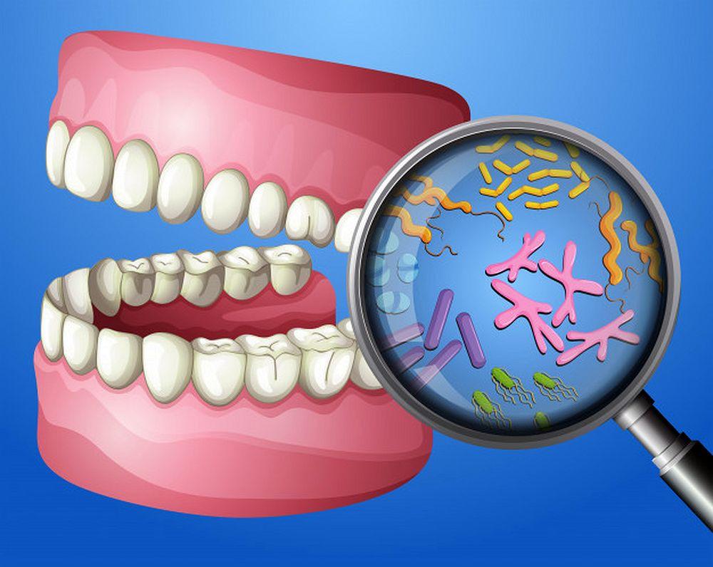 Bacterias Bucales