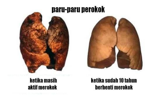 Perbandingan paru-paru perokok dan sudah tidak aktif merokok