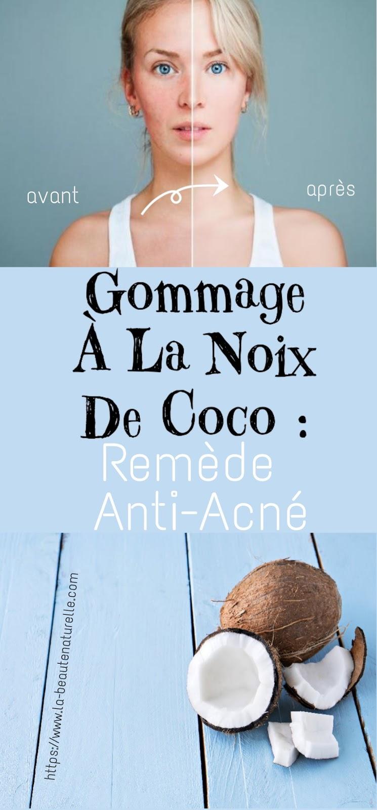 Gommage À La Noix De Coco : Remède Anti-Acné
