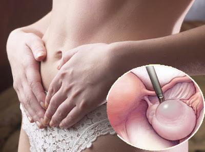 علامات الإصابة بكيس المبيض التي تتجاهلها النساء يوميا.