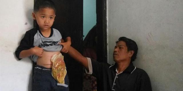 Yusa, Bocah 6 Tahun ini Hidup dengan Usus Diluar Perut Dibungkus Plastik Selama 6 Bulan