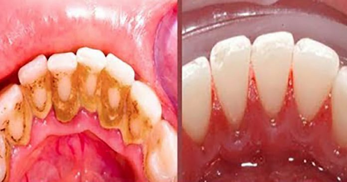 Dental Plaque: Here's A Simple Tip That Lets You Never Go To The Dentist