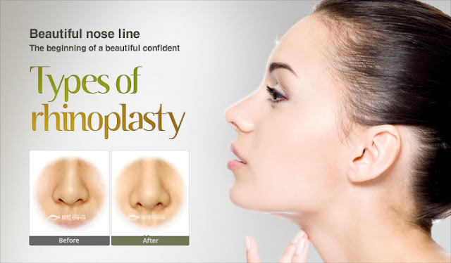 best rhinoplasty surgery cost in delhi