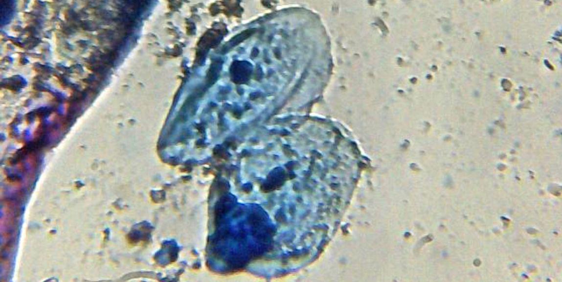 Biología celular (IX): el núcleo celular - Biología