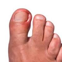 ingrown toenail tampa podiatrist