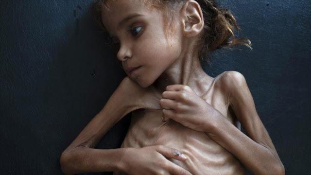 Muere niña yemení que se convirtió en símbolo de crímenes saudíes