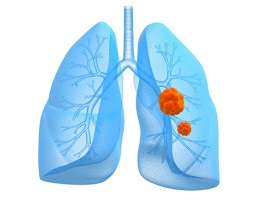 Small Cell Lung Cancer Prognosis