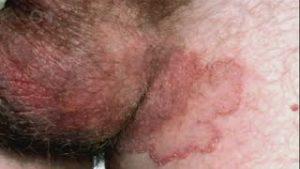 obat kulit buah zakar gatal, kering dan mengelupas