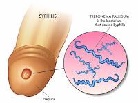 Ciri ciri Penyakit Sipilis Sudah Sembuh Total dan Tuntas