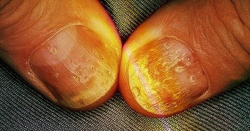 Remedios Caseros para la Psoriasis Ungueal