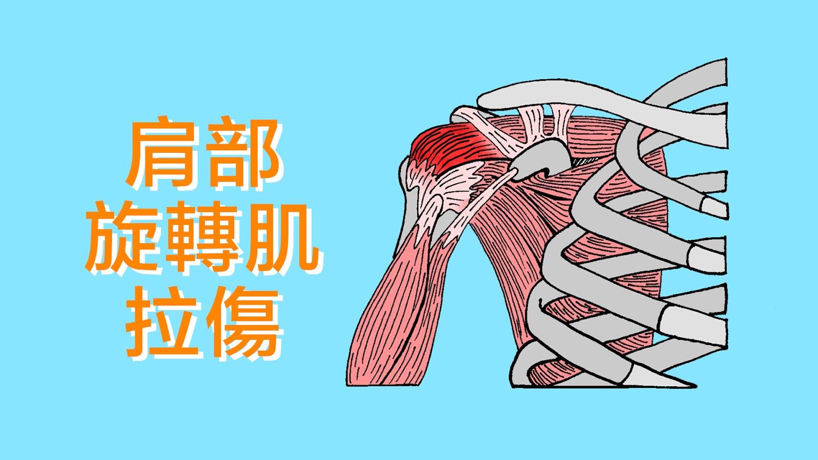 好痛痛 - 運動傷害 (4) 十大常見運動傷害
